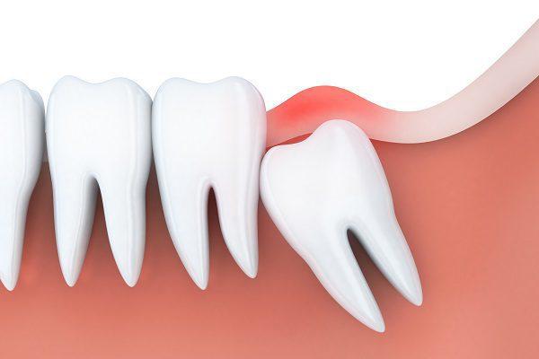 Cách khắc phục sưng nướu răng trong cùng do răng khôn?