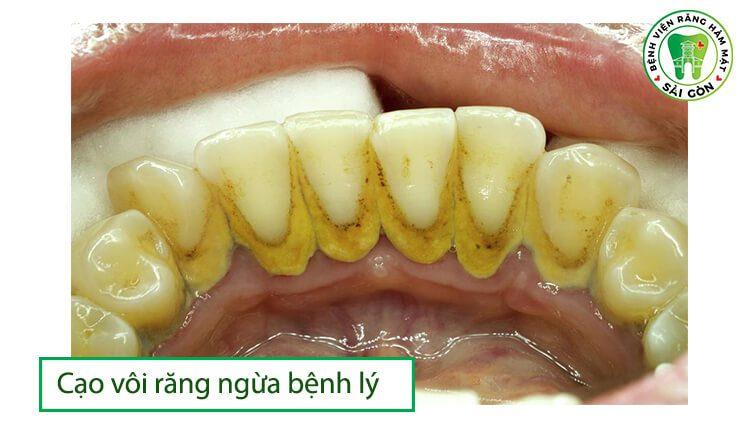 loại bỏ cao răng ngăn bệnh lý