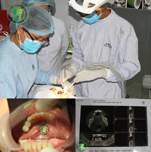 cay-ghep-rang-implant-la-gi