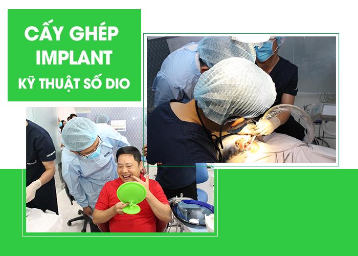 Cay-ghep-rang-implant-an-toan-va-hieu-qua