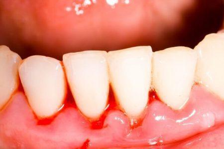 chảy máu chân răng là bệnh lý gì