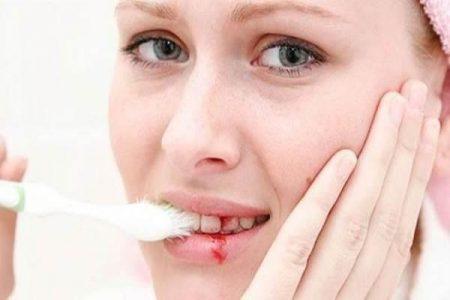 chảy máu chân răng phải làm sao
