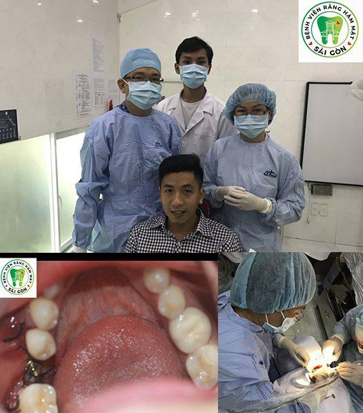 implant-nha-khoa-la-gi