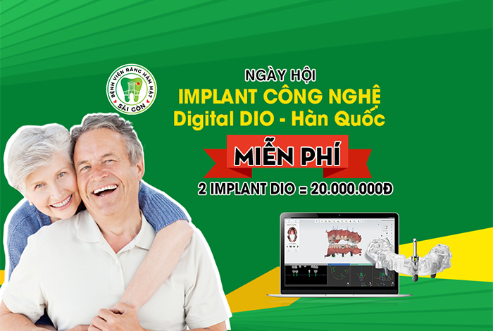 ngay-hoi-implant-digital-1