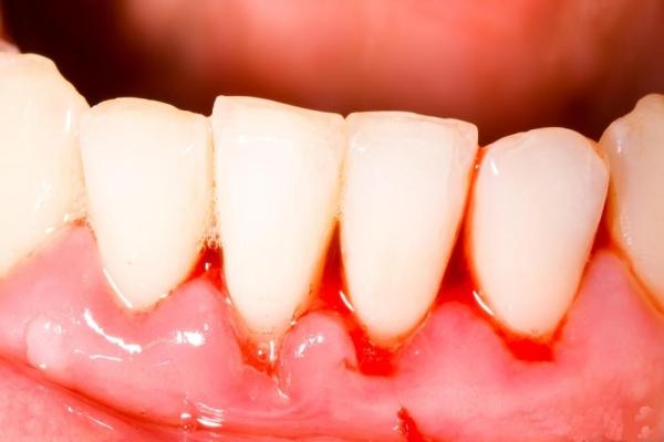 Nguyên nhân chảy máu chân răng là gì