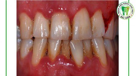 sưng nướu răng