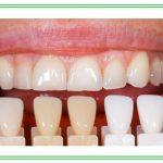 bọc răng sứ có tác hại gì
