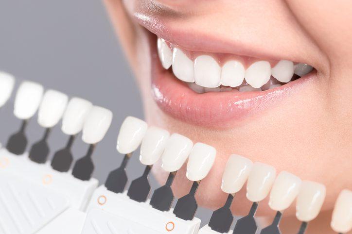 bọc răng sứ cho răng cửa thưa