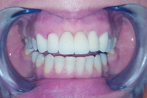 bọc răng sứ cho răng khấp khểnh