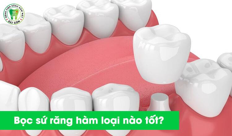 bọc răng sứ cho răng hàm ở đâu