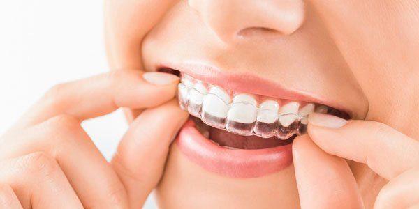 Niềng răng trong suốt là gì?