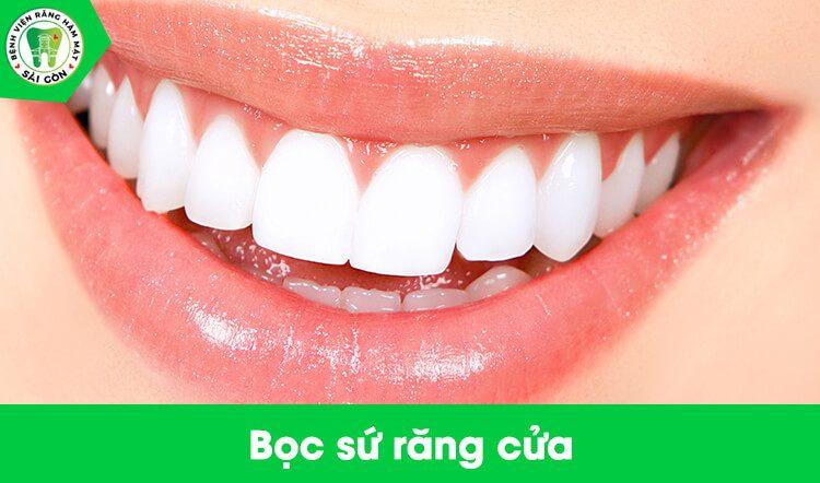 bọc sứ 2 răng cửa