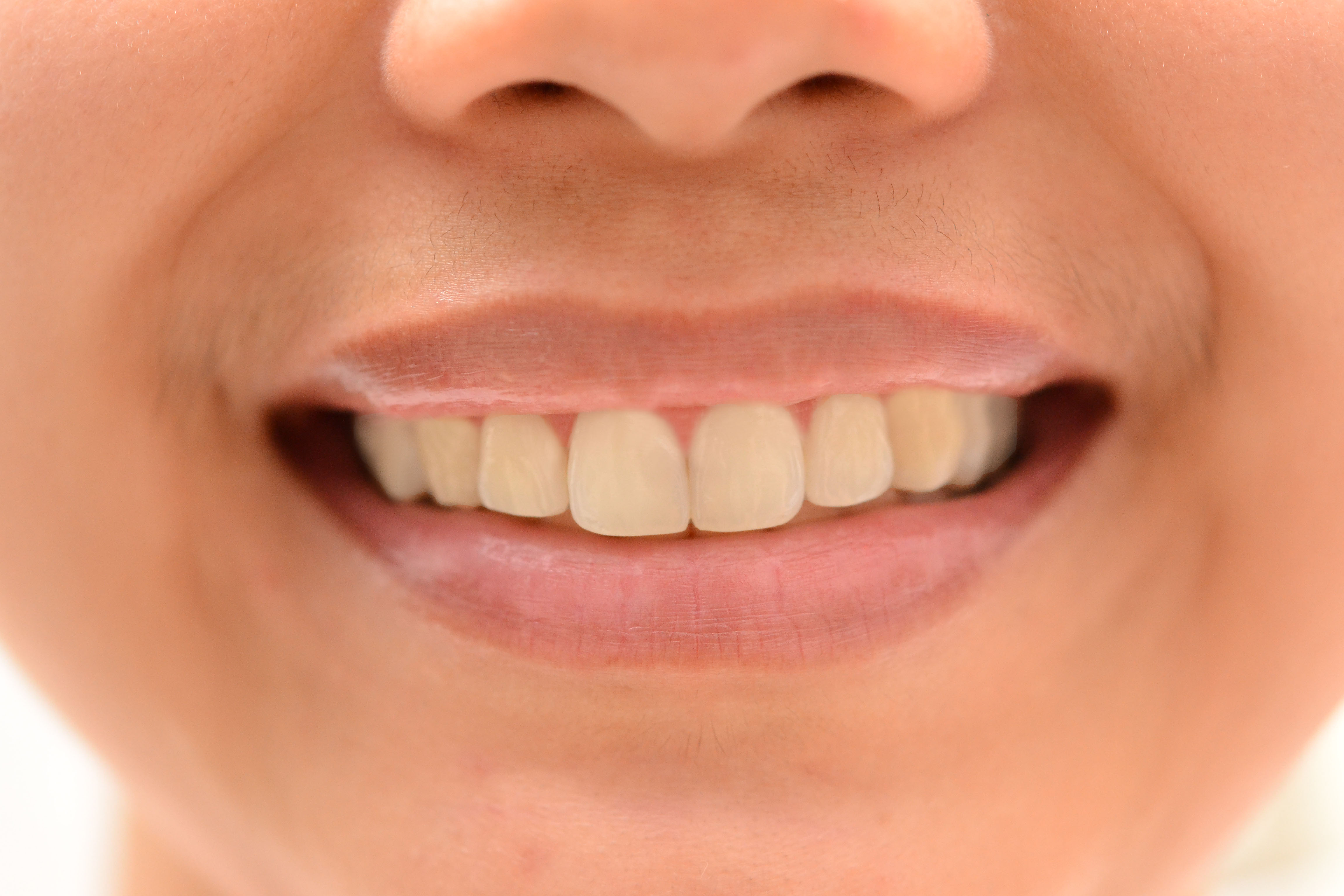 có nên tẩy trắng răng không
