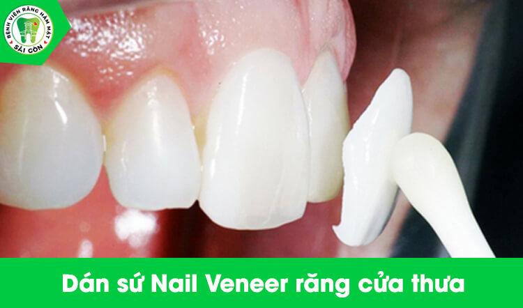 dán sứ nail veneer