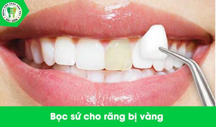 dán sứ cho răng bị vàng