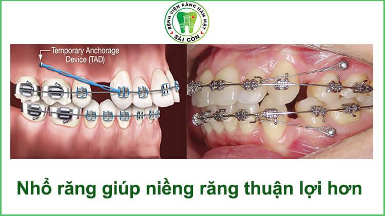 niềng răng có phải nhổ răng