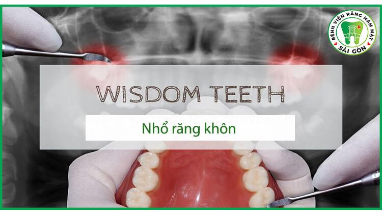 Nhổ răng khôn có gây nguy hiểm không