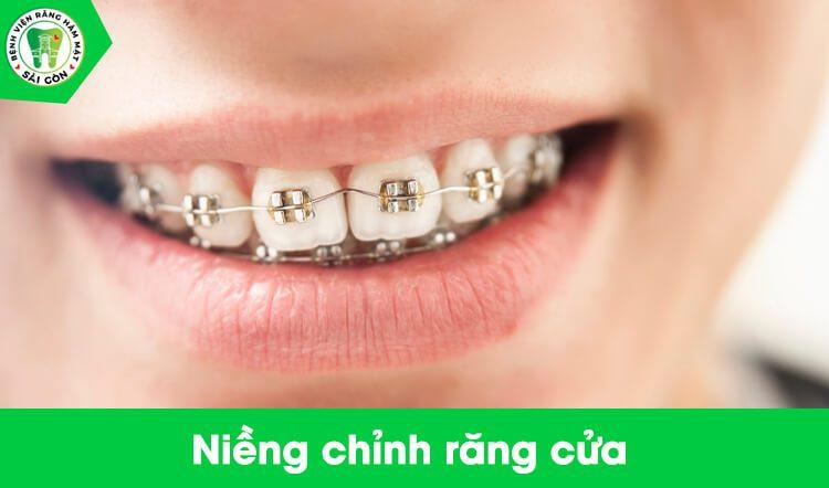 niềng răng cửa