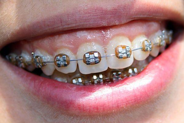 niềng răng hô hàm trên hiệu quả
