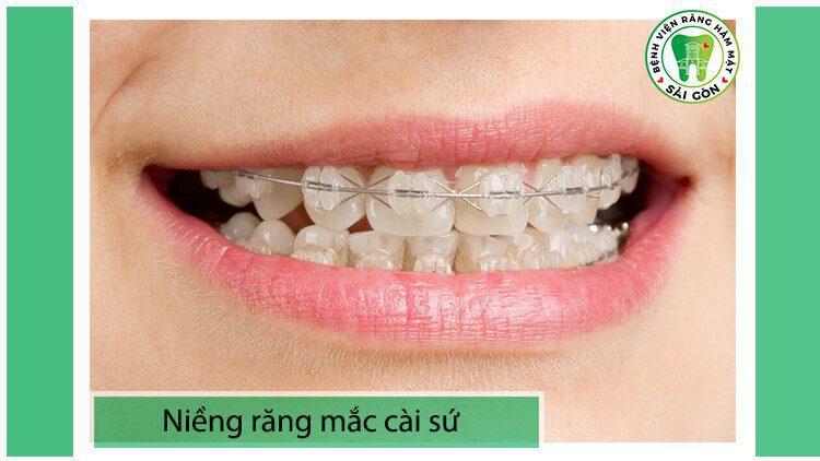 niềng răng mắc cài sứ thường