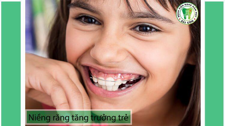 có nên niềng răng tăng trưởng cho trẻ em