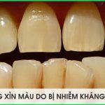 tẩy trắng răng bị nhiễm kháng sinh