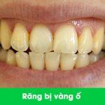 răng bị vàng ố