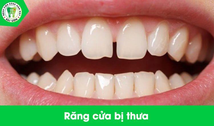 Bọc sứ răng cửa thưa