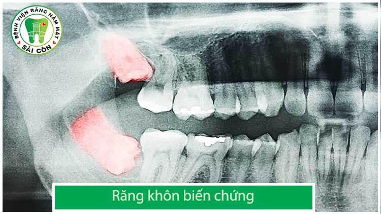 răng khôn bị biến chứng