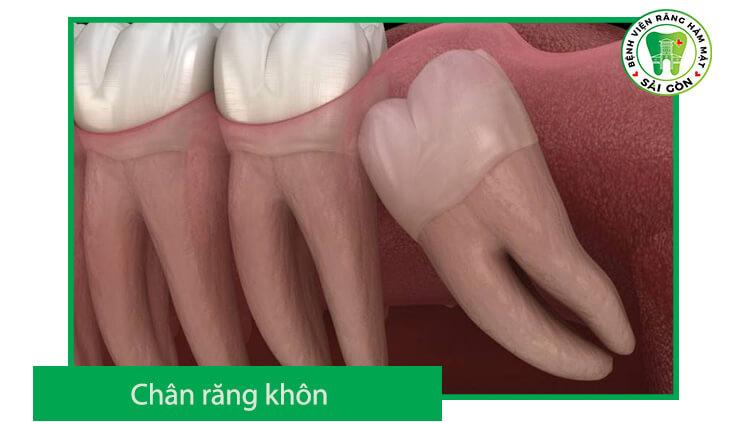 chân răng khôn