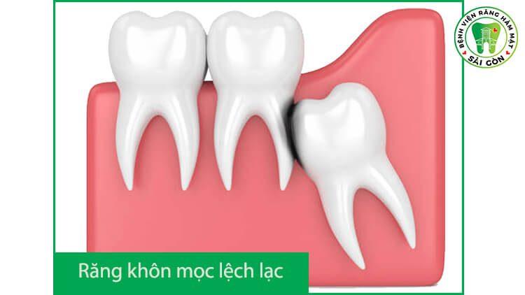 răng khôn mọc lệch ra má phải làm sao