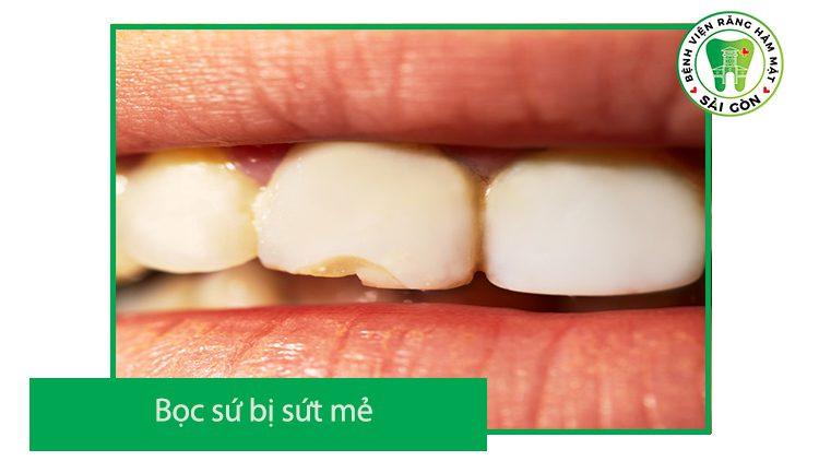 răng sứ bị sứt mẻ phải làm sao
