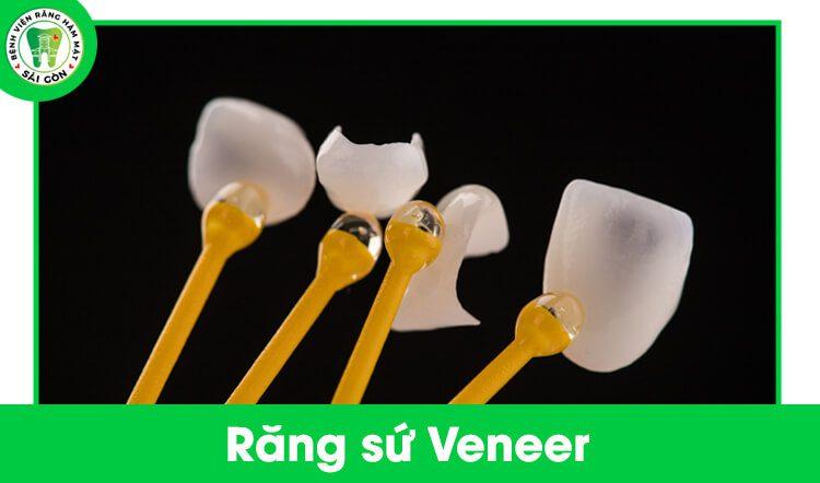 các loại răng sứ cao cấp