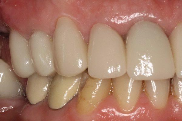 răng sứ tẩy trắng được không