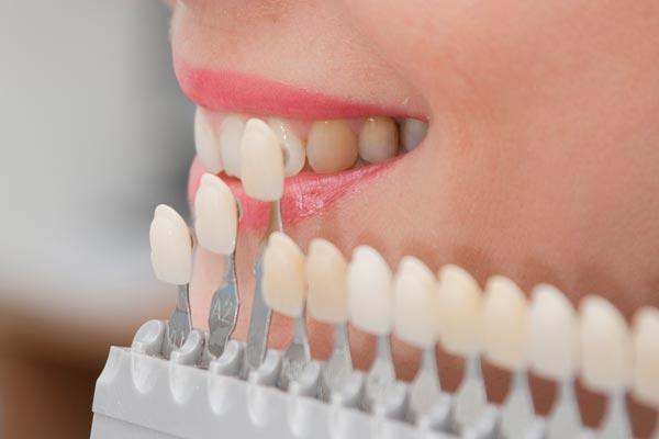 Răng sứ Veneer có tốt không?