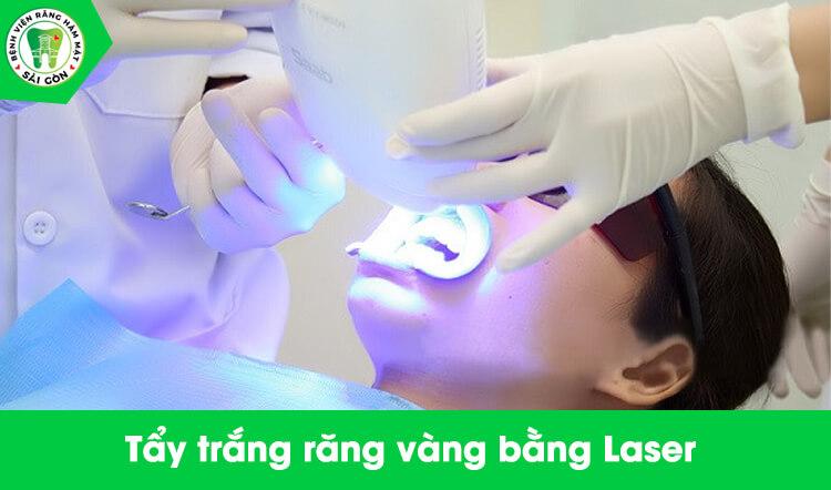 răng bị vàng có tẩy trắng được không