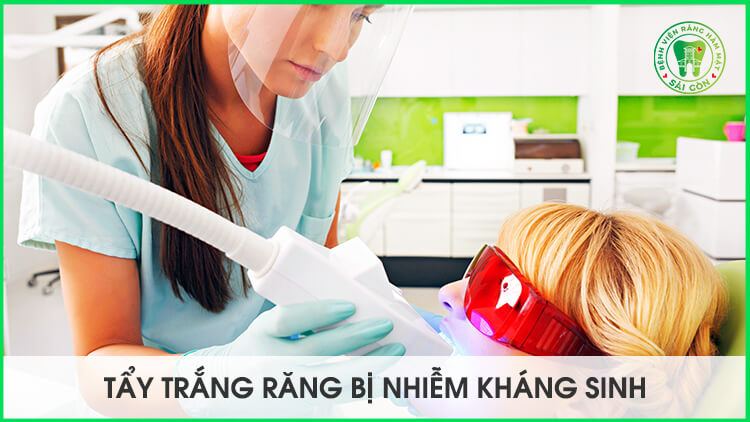 Tẩy trắng răng bị nhiễm tetracycline