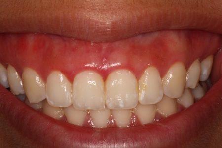 bệnh viêm chân răng có nguy hiểm không
