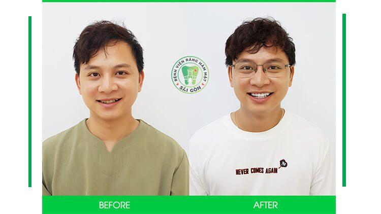 Độ bền của răng sứ thẩm mỹ là bao lâu
