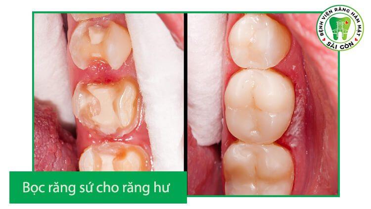 độ bền của răng sứ