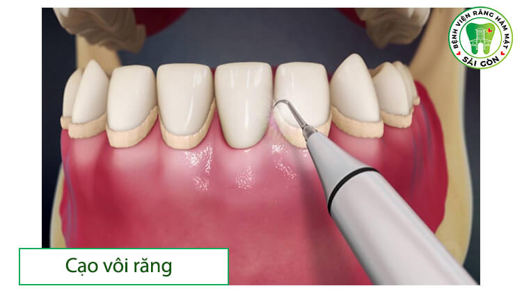 cạo vôi răng định kỳ