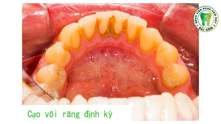 Chảy máu chân răng có gây hôi miệng không