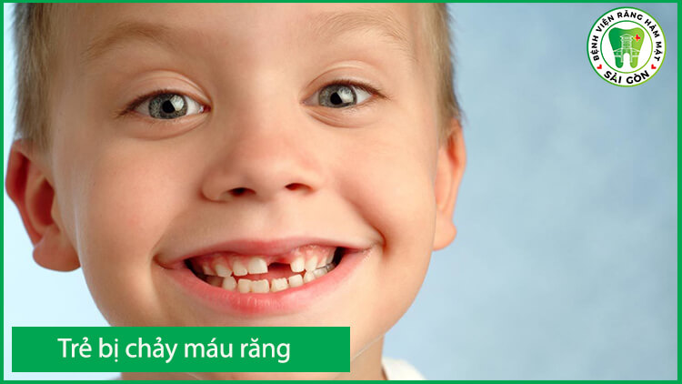 điều trị chảy máu chân răng cho trẻ