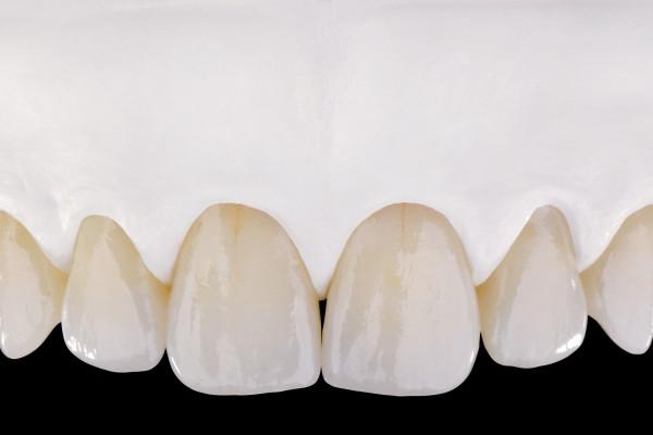 làm răng sứ nào tốt