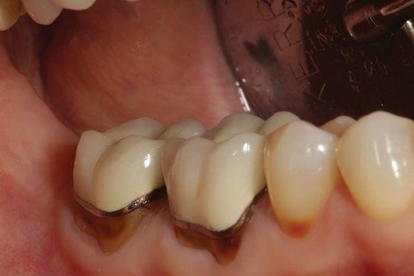 làm răng sứ Titan