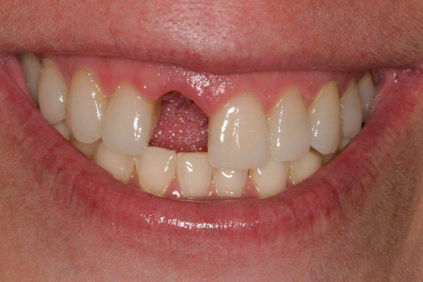 nhổ răng cửa