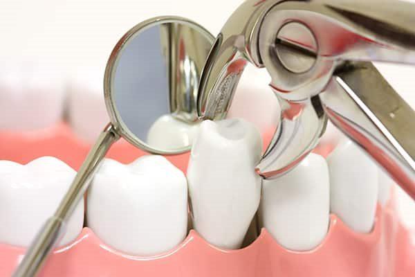 nhổ răng hàm bao nhiêu tiền