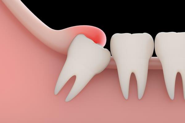 nhổ răng hàm dưới