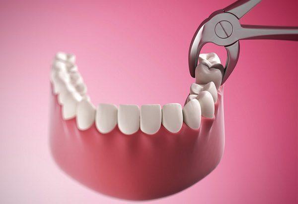 nhổ răng hàm dưới giá bao nhiêu