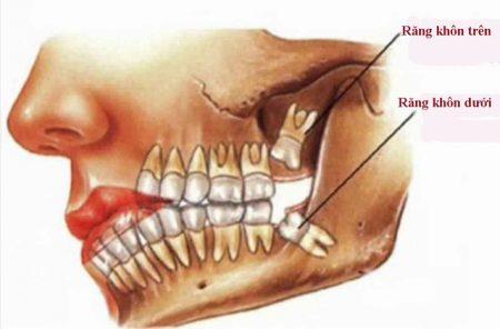 nhổ răng hàm trên